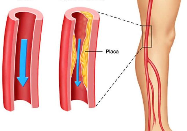 Cirugía vascular periférico consulta externa Fundación hospital san carlos
